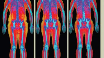 Love Yourself, Love Your Bones: Why Osteoporosis Matters