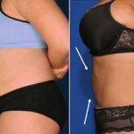 Burn Your Spanx: Done in a Day, Mini-Mommy Tuck Gets You to Life in 24 Hours