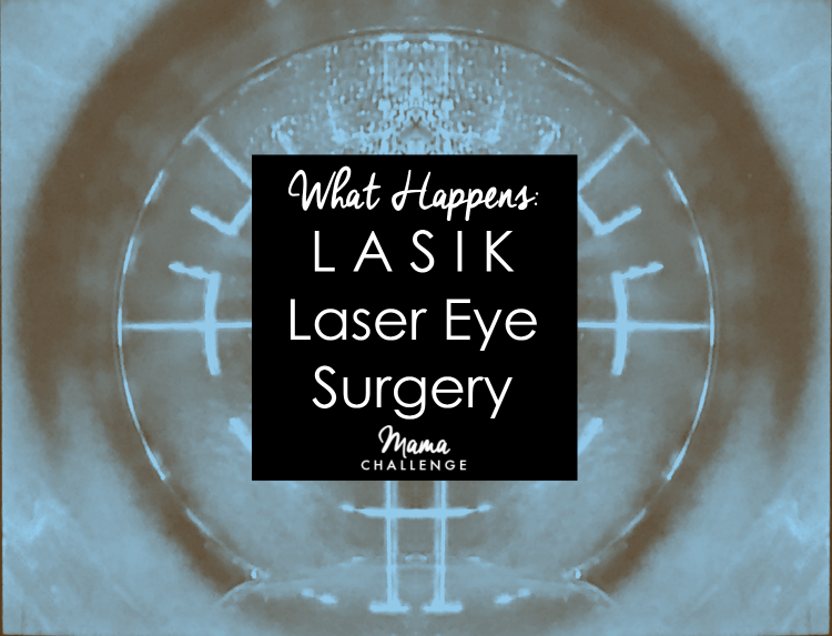 What Happens Lasik Laser Eye Surgery