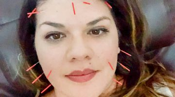 "Women Need Pricks: Acupuncture is the Answer for ""Girl Problems"""